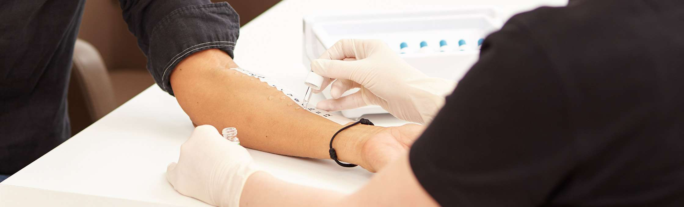 A patient at the allergy test. A hand of the female doctor dressed in gloves dribbles an allergen liquid on the patient's skin. The reactions of the skin enables the diagnosis of allergies and the decision about the treatment methods.
